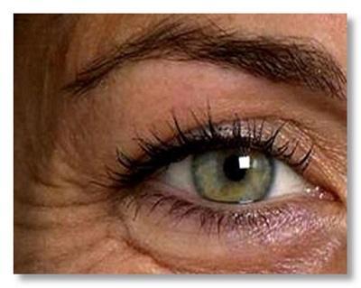 vrásky kolem oči